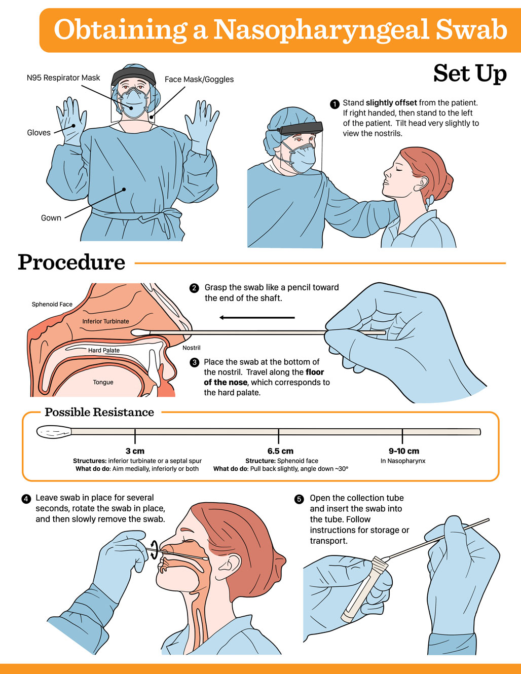 Infographic for obtaining a nasopharyngeal swab