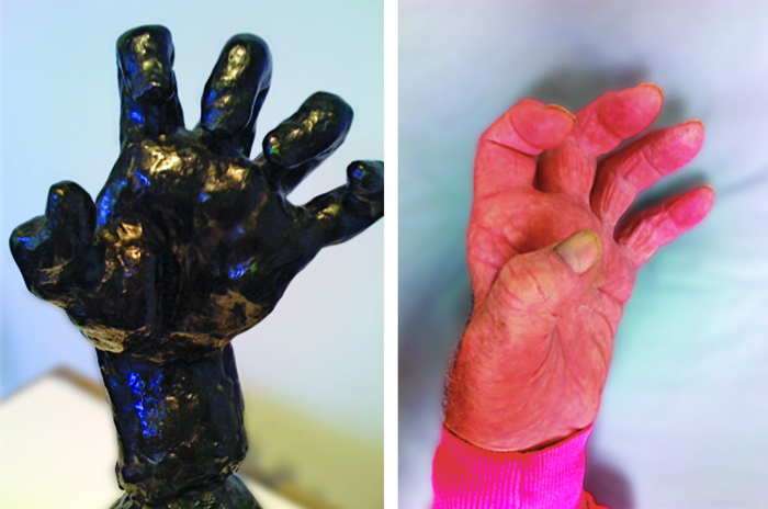 Rodin's crippled hand sculpture next to the real hand of someone with Charcot Marie Tooth Disease. Their hand is purplish and shriveled up.